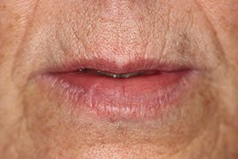 Juvederm-before-11b