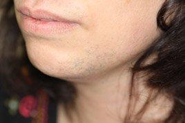 Laser-Hair-b1