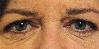 Before Botox treatment photo