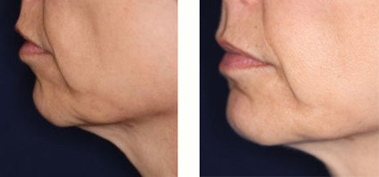 Thermage Treatment: Before and After - Olympic Dermatology & Laser