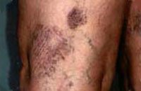 Photo before varicose vein removal