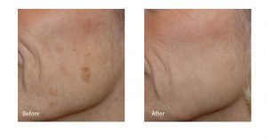 SPECTRA laser before and after photo