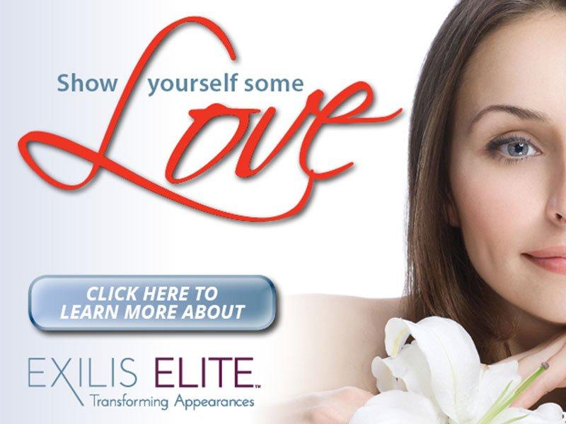 exilis-elite-ad - Olympic Dermatology & Laser Clinic
