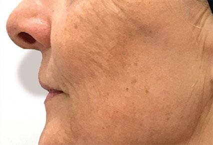 Genius skin tightening