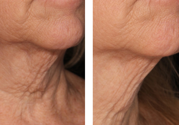 Genius skin tightening