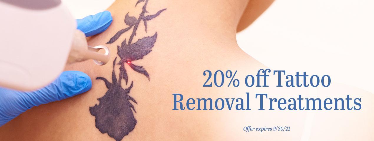 20% OFF tattoo removal treatments